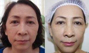 Trẻ hóa gương mặt cho phụ nữ trung niên