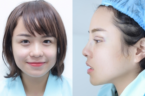 Thái Trinh trước và sau phẫu thuật thẩm mỹ (phải).