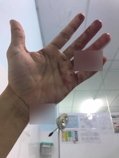 Đông Hùng đăng ảnh bàn tay thương tích vì nợ nần của mẹ.