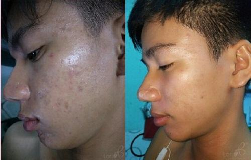 Trước và sau trị mụn chuyên sâu.
