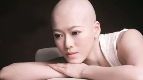 Lâm Thục Mẫn từng phải cạo tóc trong quá trình điều trị ung thư.