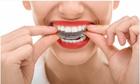 Hội thảo niềng răng cho thanh thiếu niên