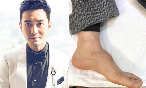 Hiểu Minh đăng ảnh bàn chân lồi trên trang cá nhân.