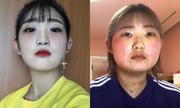 Con gái Choi Jin Sil tăng 10 kg vì bệnh Lupus