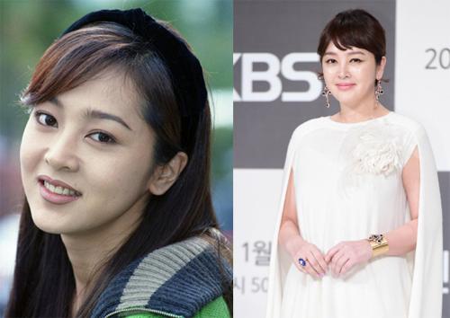 Lee Seung Yeon thời trẻ và khi ở tuổi