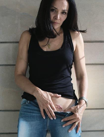 Sarah Edmondsonphơi bày vết sẹo. Ảnh:New York Times.