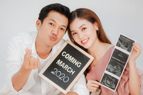 Vợ chồng Quang Tuấn chụp ảnh kỷ niệm với hình siêu âm em bé. Linh Phi dự sinh vào tháng 3/2020. Ảnh: QT.