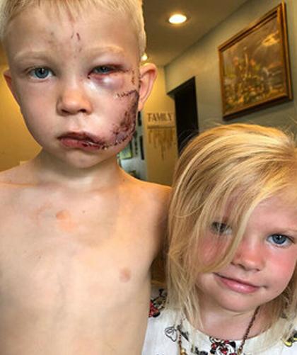 Bridger Walker và em gái sau vụ tai nạn. Ảnh: Instagram.